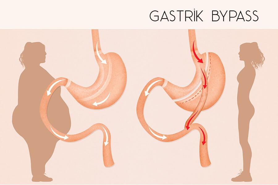gastrik_bypass