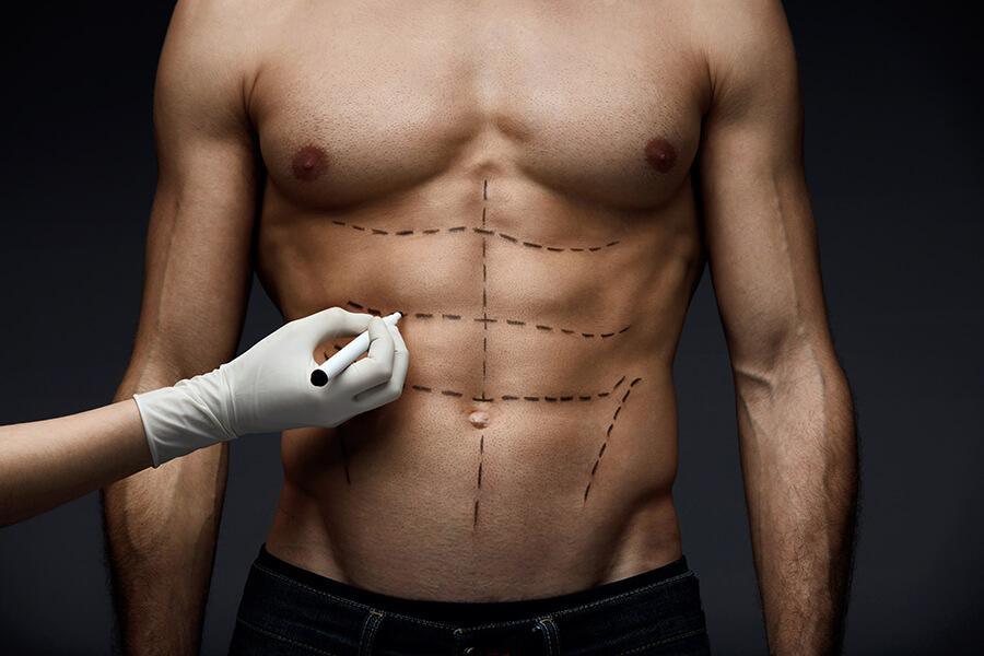 six pack ameliyati